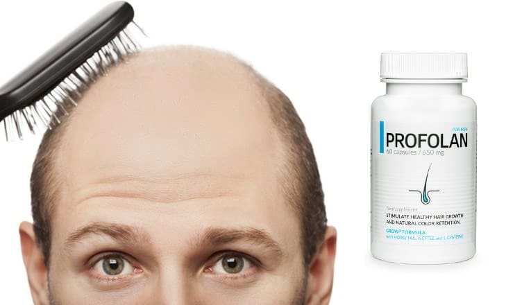 Profolan tablets for hair growth – Store, price, review and results, original, online order